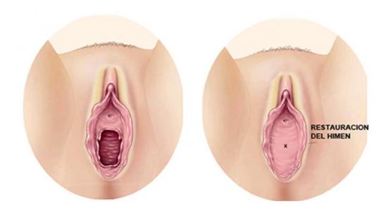 himenosplastia